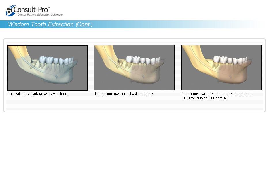 asavanant dental clinic implant bangkok thailand laser tooth
