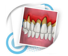 Periodontic Dental Service